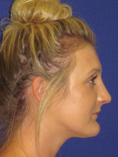 Rhinoplasty Gallery - Patient 4891196 - Image 2