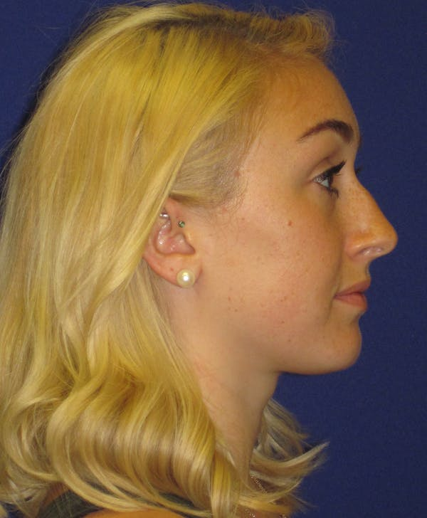 Rhinoplasty Gallery - Patient 4891200 - Image 3