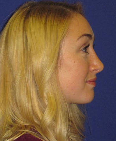 Rhinoplasty Gallery - Patient 4891200 - Image 4