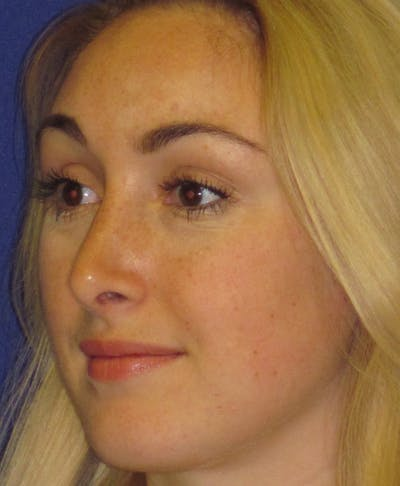 Rhinoplasty Gallery - Patient 4891200 - Image 6