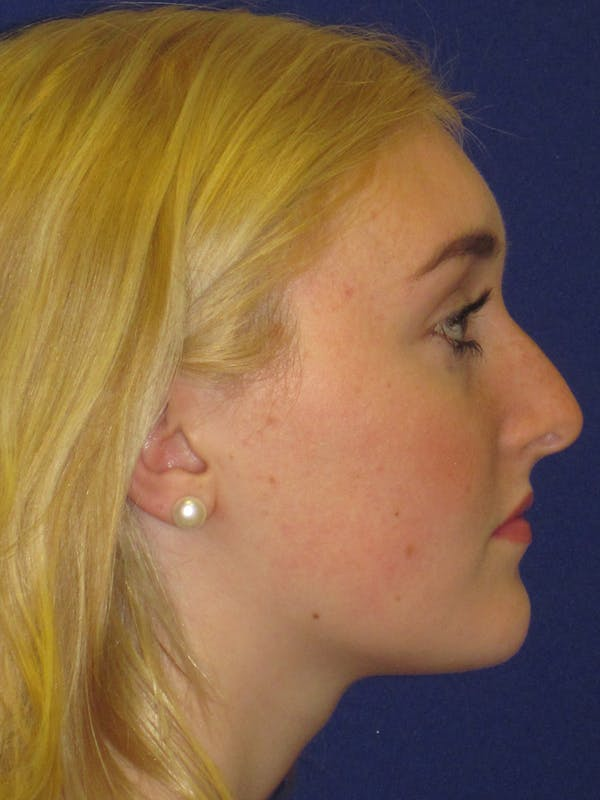 Rhinoplasty Gallery - Patient 4891201 - Image 3