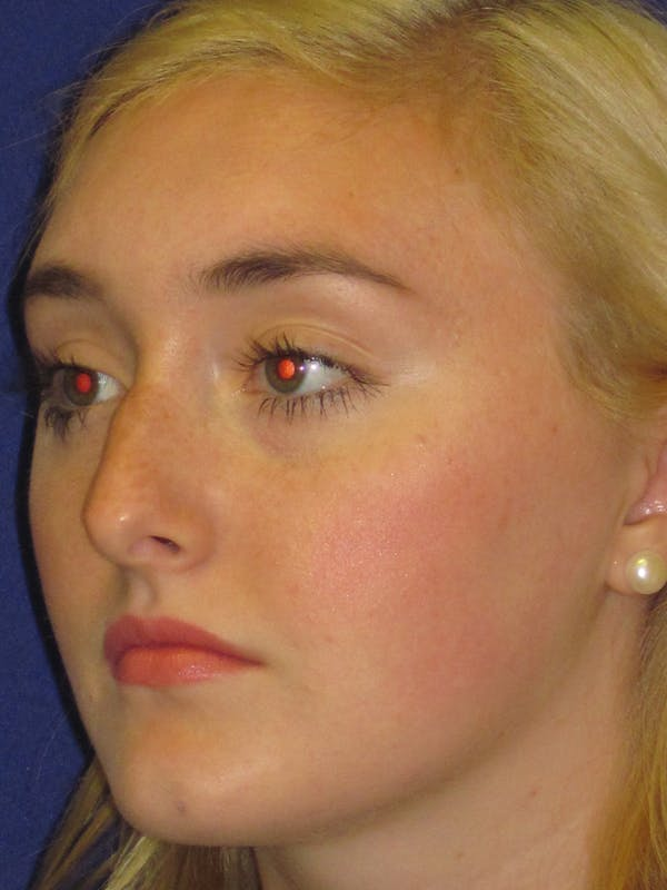 Rhinoplasty Gallery - Patient 4891201 - Image 5