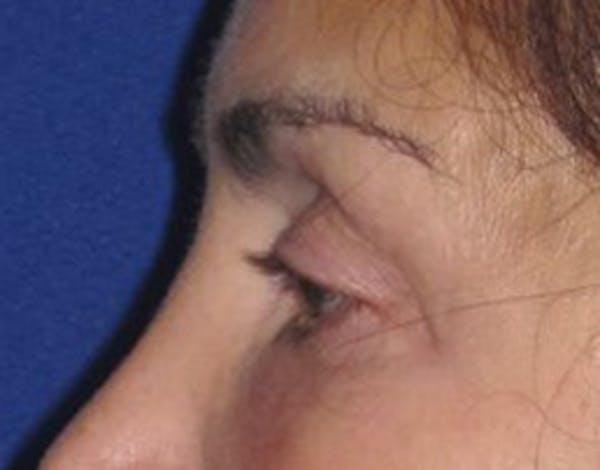Blepharoplasty Gallery - Patient 4891204 - Image 2