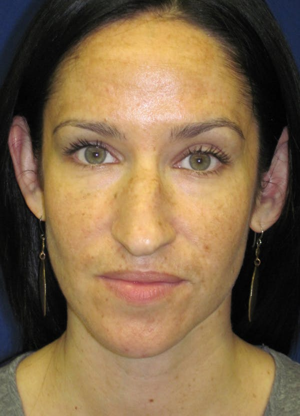 Rhinoplasty Gallery - Patient 4891207 - Image 1