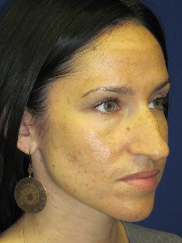 Rhinoplasty Gallery - Patient 4891207 - Image 3