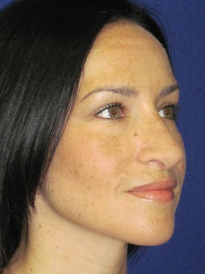 Rhinoplasty Gallery - Patient 4891207 - Image 4