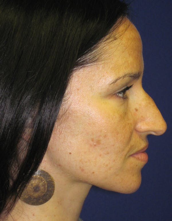 Rhinoplasty Gallery - Patient 4891207 - Image 5