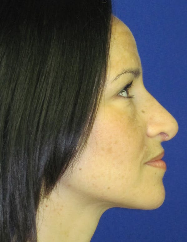 Rhinoplasty Gallery - Patient 4891207 - Image 6