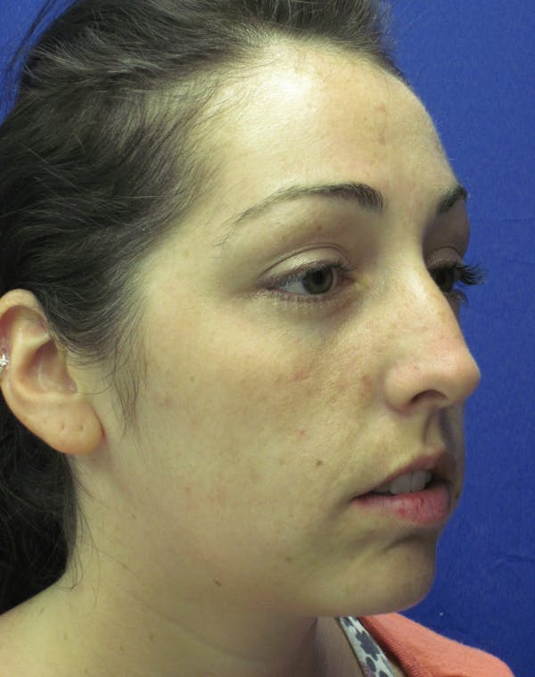 Rhinoplasty Gallery - Patient 4891283 - Image 3