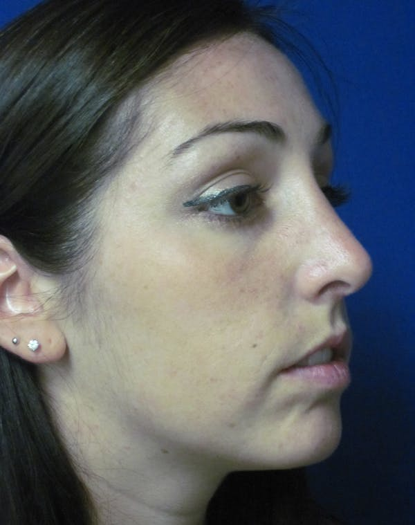 Rhinoplasty Gallery - Patient 4891283 - Image 4