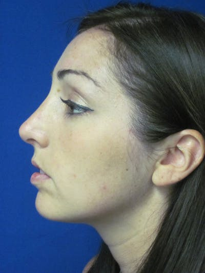Rhinoplasty Gallery - Patient 4891283 - Image 6