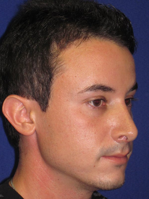 Rhinoplasty Gallery - Patient 4891308 - Image 4