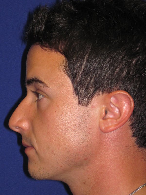 Rhinoplasty Gallery - Patient 4891308 - Image 5