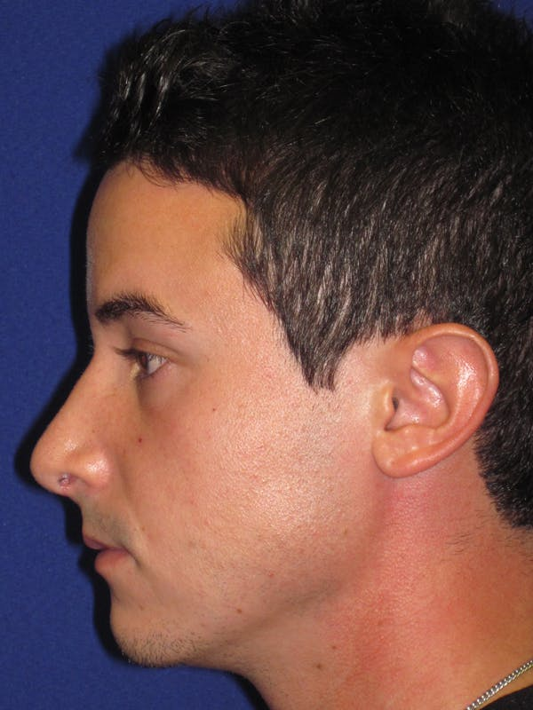 Rhinoplasty Gallery - Patient 4891308 - Image 6