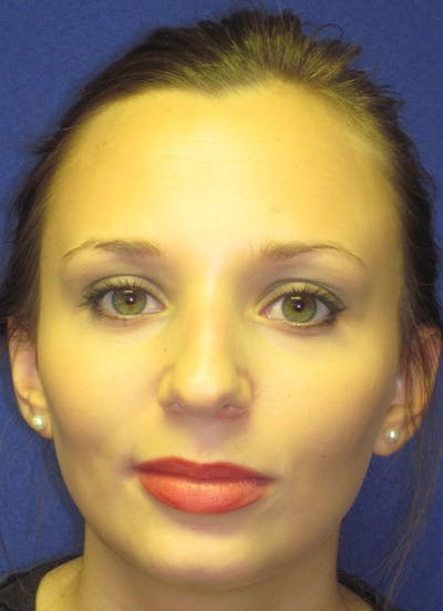 Rhinoplasty Gallery - Patient 4891310 - Image 1