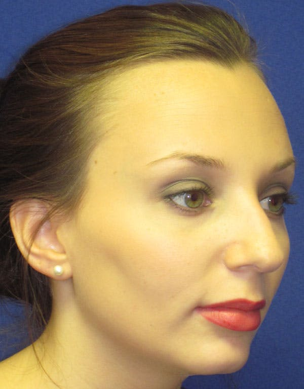 Rhinoplasty Gallery - Patient 4891310 - Image 3