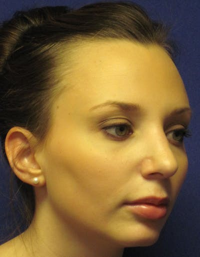 Rhinoplasty Gallery - Patient 4891310 - Image 4