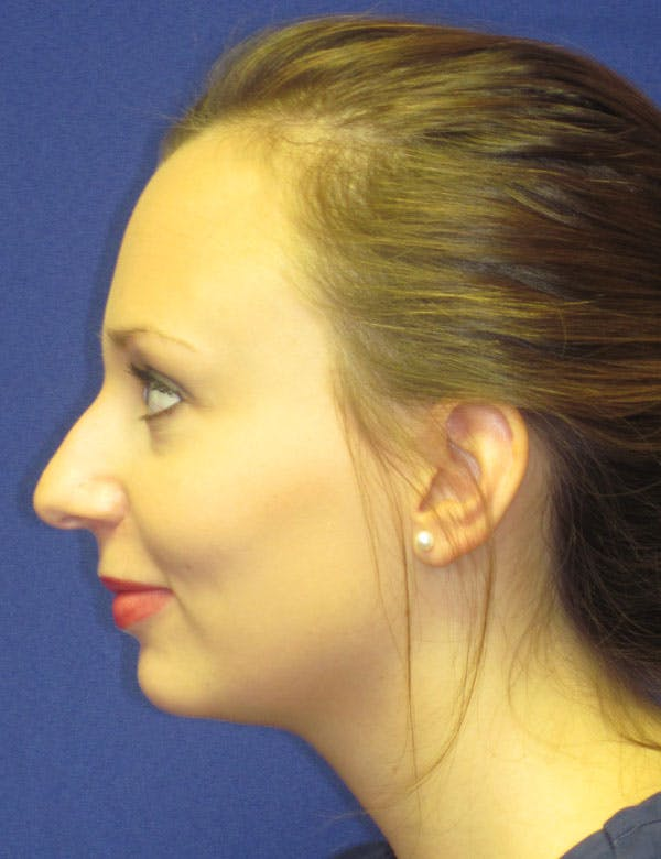 Rhinoplasty Gallery - Patient 4891310 - Image 5