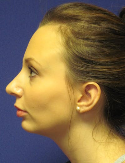 Rhinoplasty Gallery - Patient 4891310 - Image 6