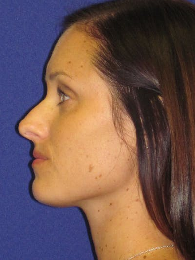 Rhinoplasty Gallery - Patient 4891311 - Image 1