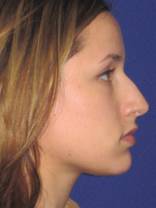 Rhinoplasty Gallery - Patient 4891313 - Image 1