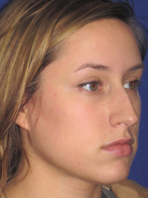 Rhinoplasty Gallery - Patient 4891313 - Image 3