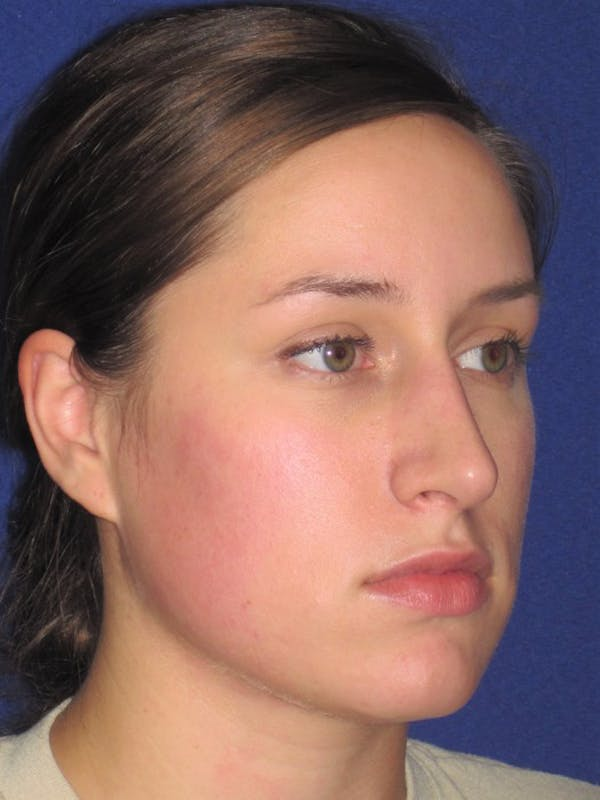 Rhinoplasty Gallery - Patient 4891313 - Image 4