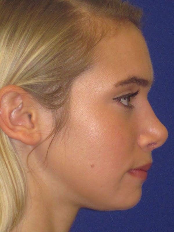 Before and after Dorsal Augmentation Rhinoplasty