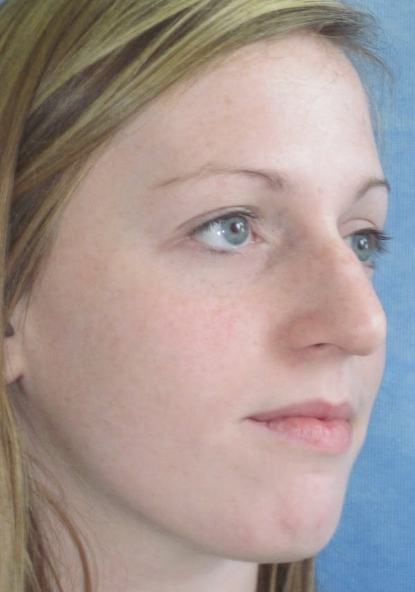 Rhinoplasty Gallery - Patient 4891321 - Image 3