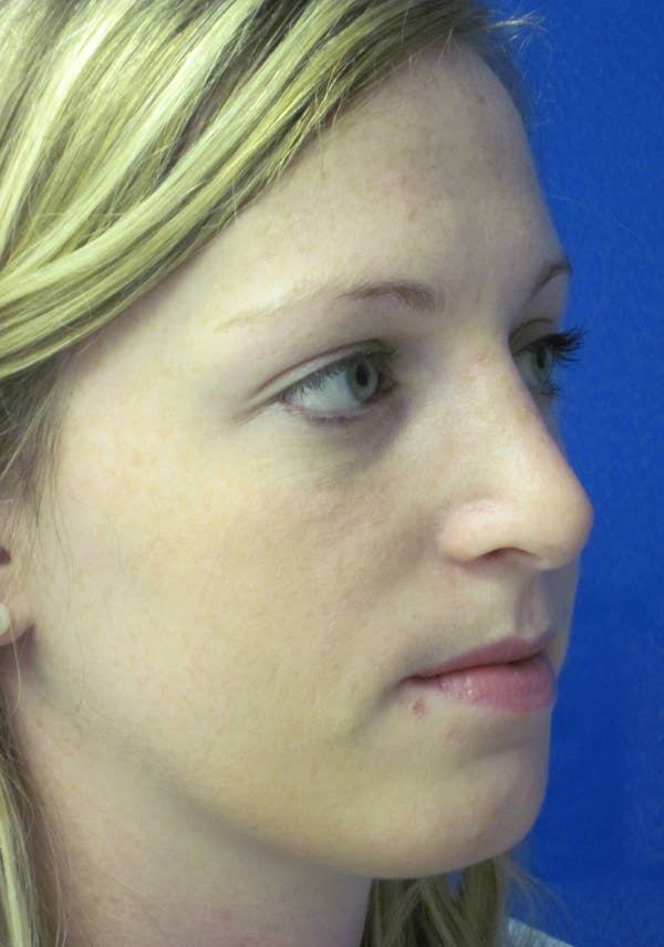 Rhinoplasty Gallery - Patient 4891321 - Image 4