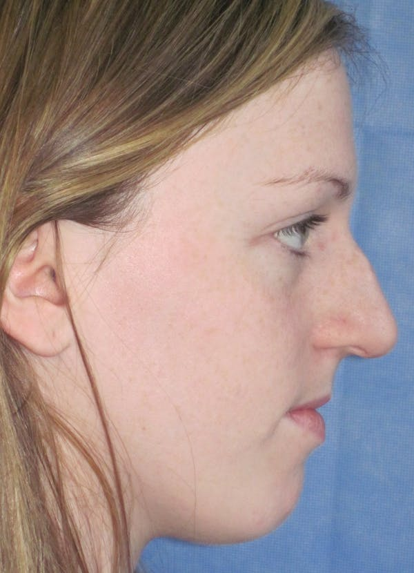 Rhinoplasty Gallery - Patient 4891321 - Image 5