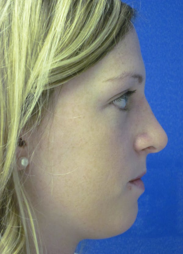 Rhinoplasty Gallery - Patient 4891321 - Image 6