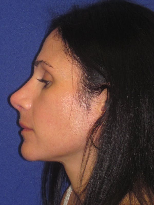 Rhinoplasty Gallery - Patient 4891323 - Image 6