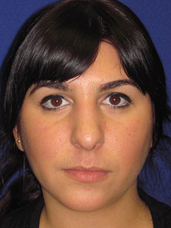 Rhinoplasty Gallery - Patient 4891324 - Image 1