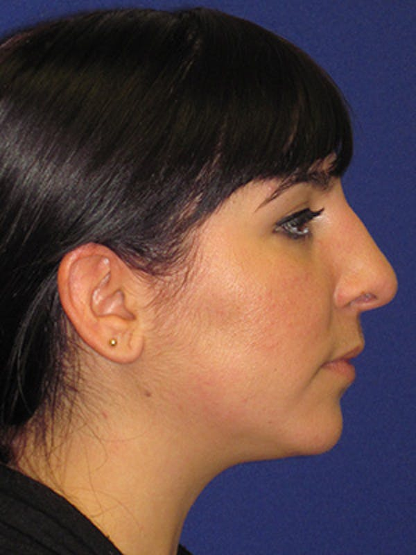 Rhinoplasty Gallery - Patient 4891324 - Image 3