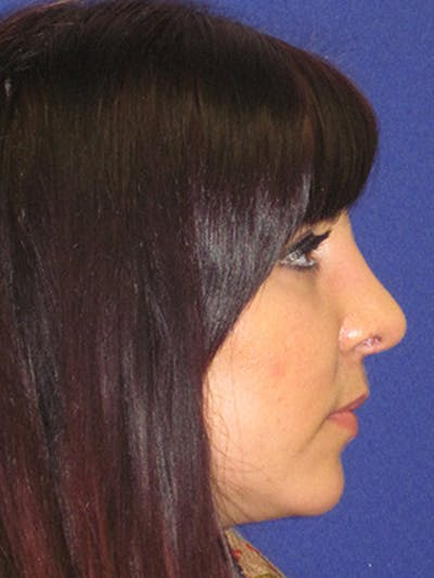 Rhinoplasty Gallery - Patient 4891324 - Image 4