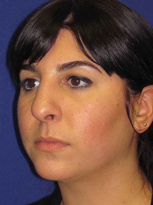Rhinoplasty Gallery - Patient 4891324 - Image 5