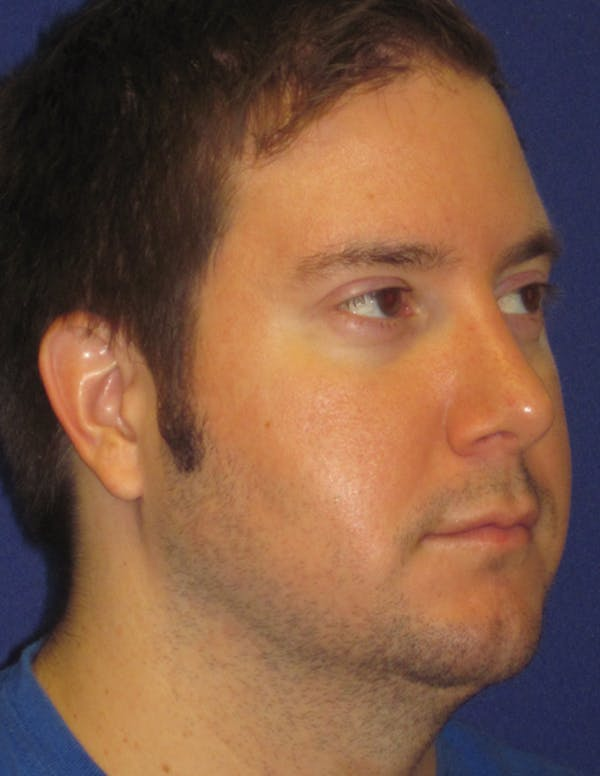 Rhinoplasty Gallery - Patient 4891330 - Image 4