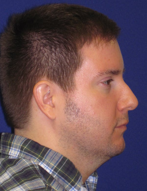 Rhinoplasty Gallery - Patient 4891330 - Image 5