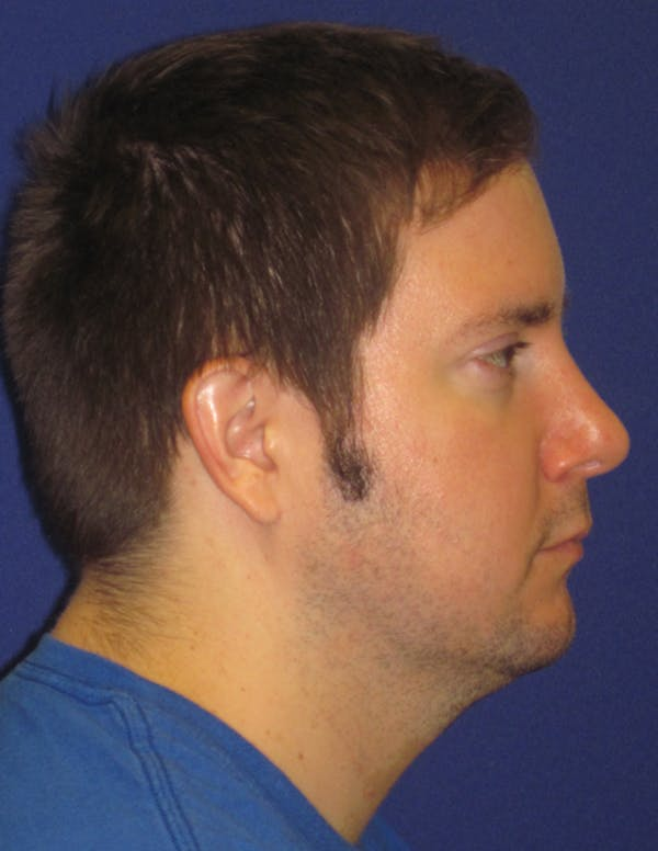 Rhinoplasty Gallery - Patient 4891330 - Image 6