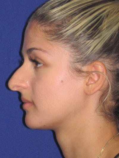 Rhinoplasty Gallery - Patient 4891331 - Image 1