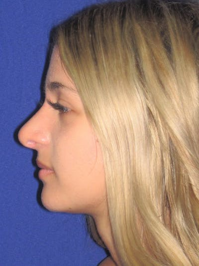 Rhinoplasty Gallery - Patient 4891331 - Image 2