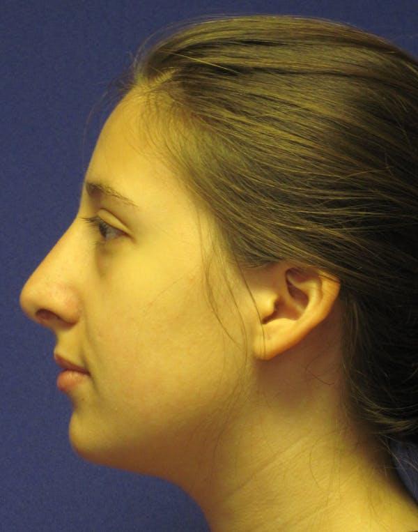 Rhinoplasty Gallery - Patient 4891337 - Image 6