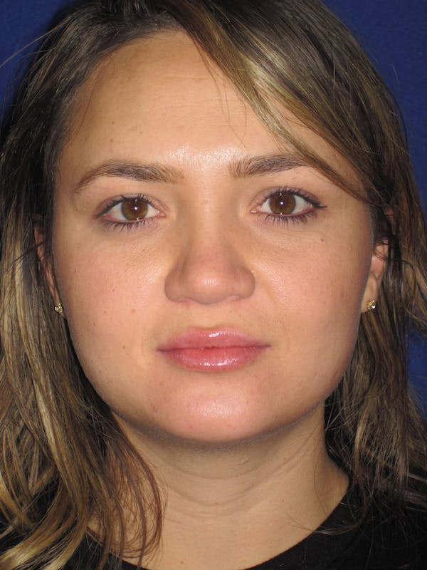 Rhinoplasty Gallery - Patient 4891342 - Image 1