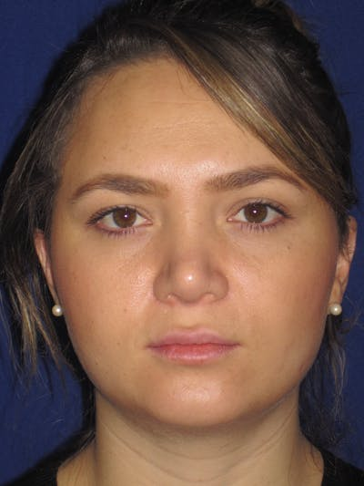 Rhinoplasty Gallery - Patient 4891342 - Image 2