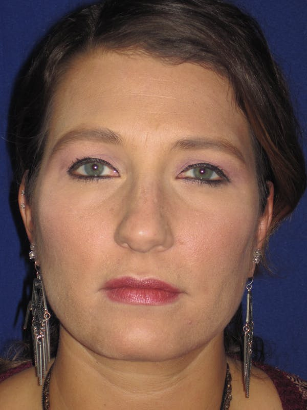 Rhinoplasty Gallery - Patient 4891349 - Image 1