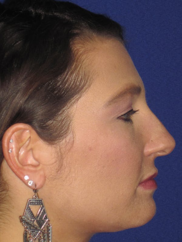 Rhinoplasty Gallery - Patient 4891349 - Image 3