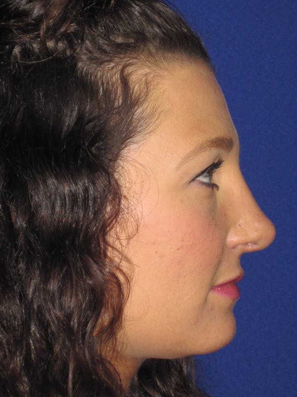 Rhinoplasty Gallery - Patient 4891349 - Image 4