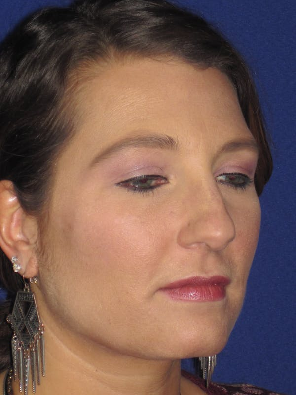 Rhinoplasty Gallery - Patient 4891349 - Image 5