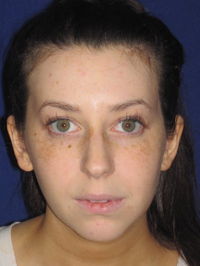 Rhinoplasty Gallery - Patient 4891356 - Image 1